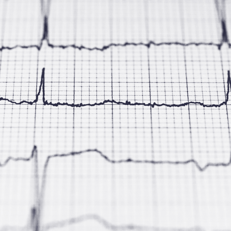 The biology of performance: answering your HRV questions